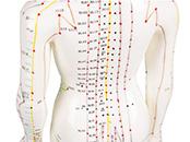 Für Akupunktur